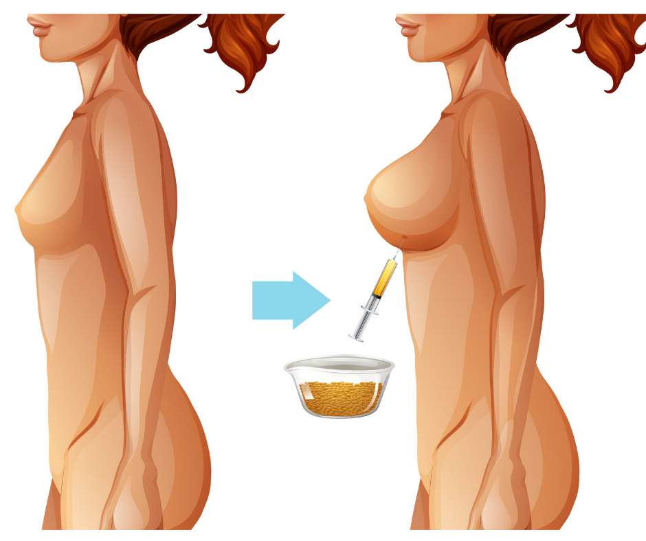 BeautiFill-Non-Surgical-Fat-Transfer-Breast-Lift