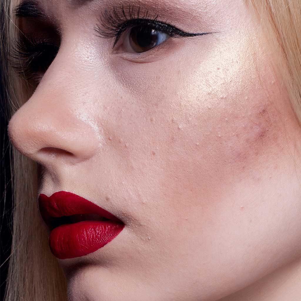 Acne-Scars