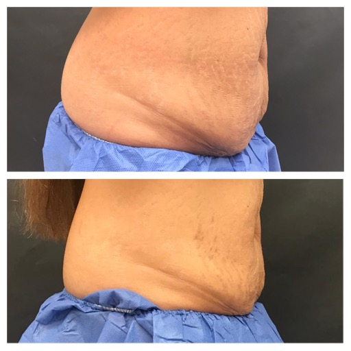 Cellulite and Fat Reduction & Body Contouring BEFORE & AFTER 12