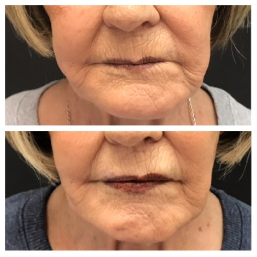 ViVi Nonsurgical Facelift
