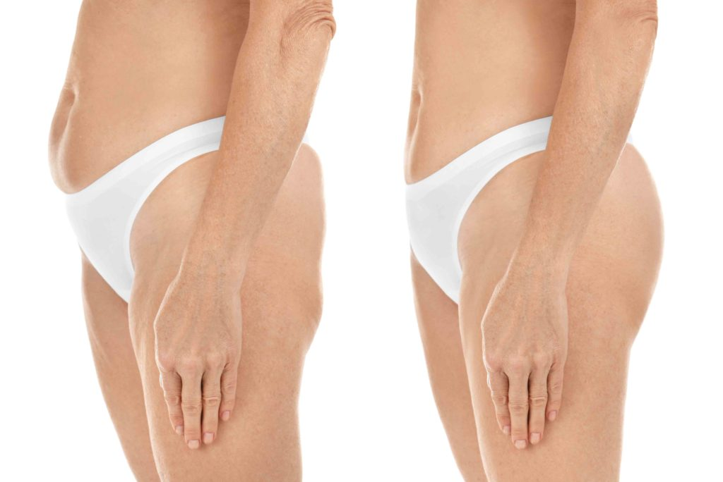 Mature woman body before and after liposuction. Plastic surgery
