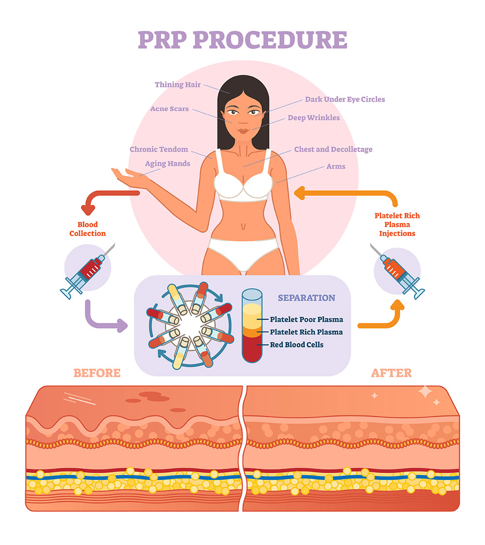 PRP_Procedure