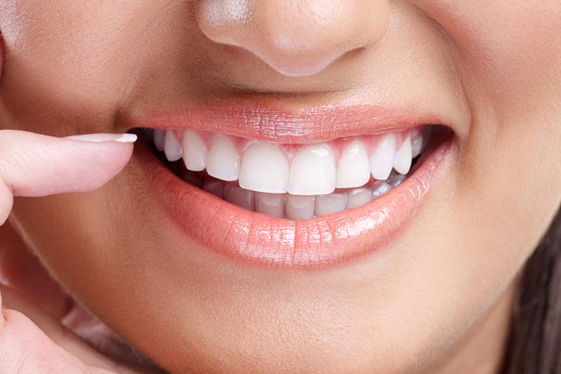 teeth-whitenin