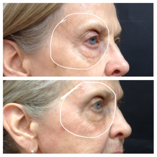 Skinwave Facial