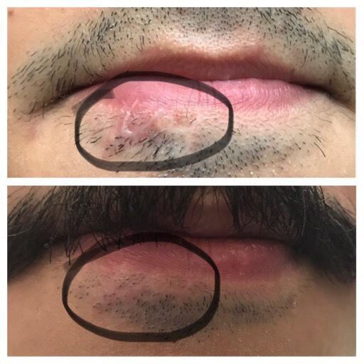 Scars remove